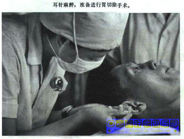 老照片-针刺麻醉 2