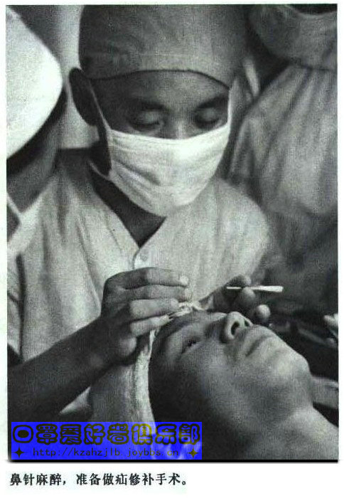 老照片-针刺麻醉 1