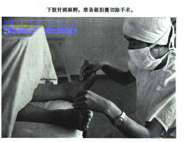 老照片-针刺麻醉 4
