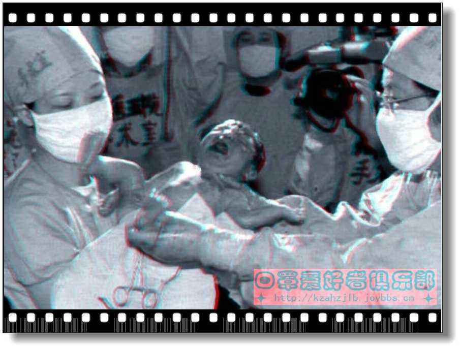 【原创 - 红蓝立体】第一例试管婴儿